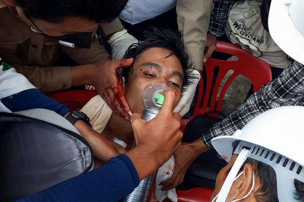 미얀마 남부도시 다웨이에서 28일 열린 반쿠데타 시위에 참가했다가 다쳐서 의료진의 치료를 받고 있는 시민